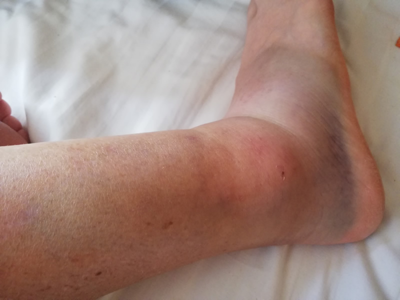 Ankle Sprains' Healing Times